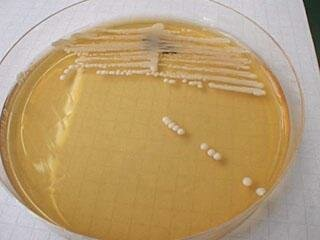 Example of Candida albicans